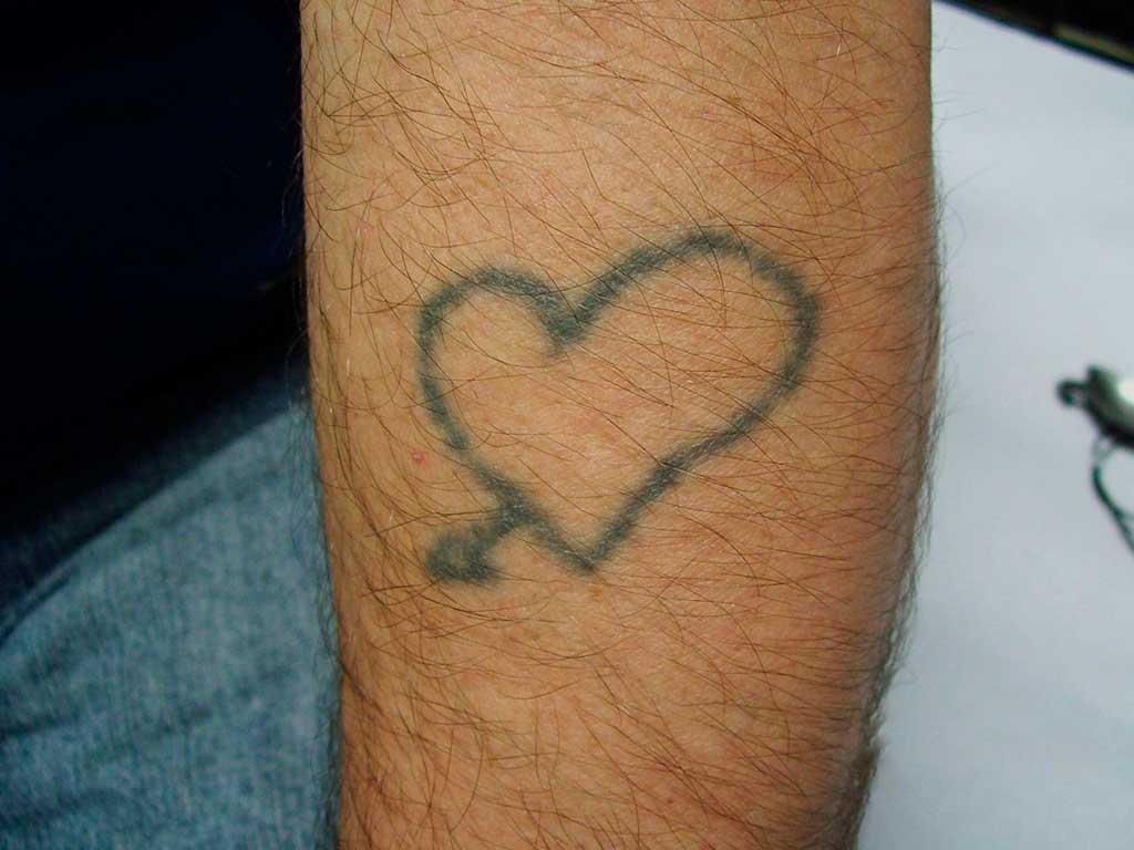 Eliminación tatuaje en antebrazo