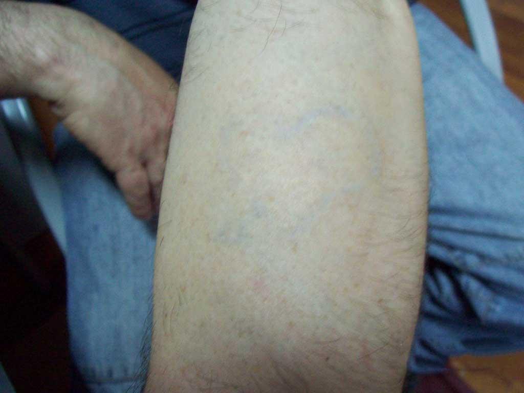 Borrar tatuaje en el brazo